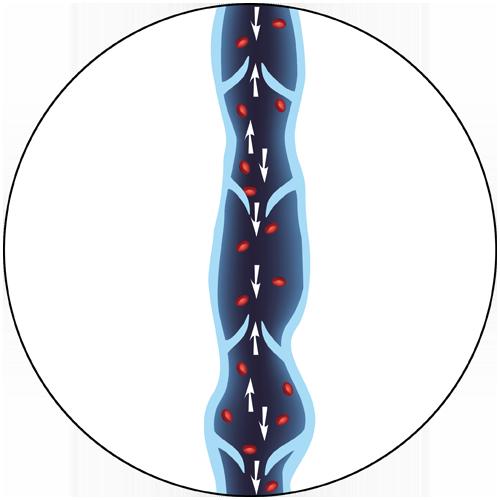 Diseased Vein Illustration