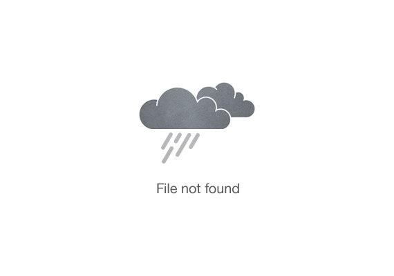 mujer con tratamiento de pérdida de cabello