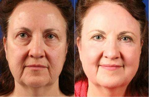 Collagen, Blue Light Therapy, Reduce Wrinkles, Reduce Acne, Hyperpigmentation