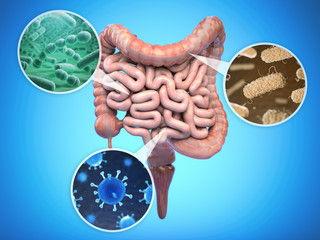 Symptoms of Leaky Gut -
