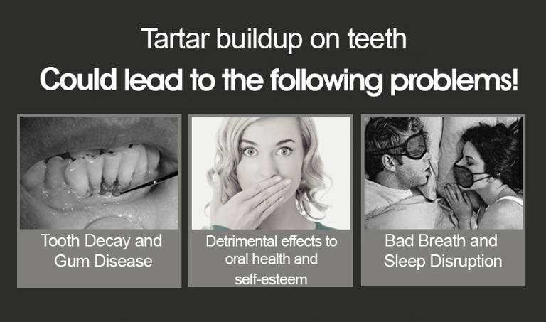 Remove Tartar at Home, Plaque Remover Tool, Dental Health
