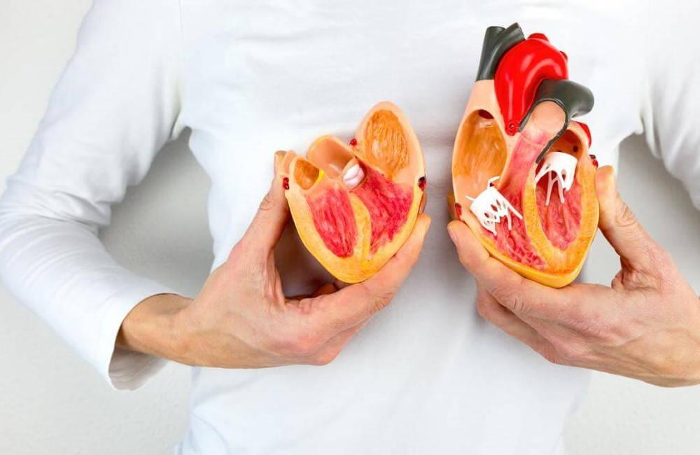 부비동 부정맥, 부비동 부정맥, 심장병이란 무엇입니까?