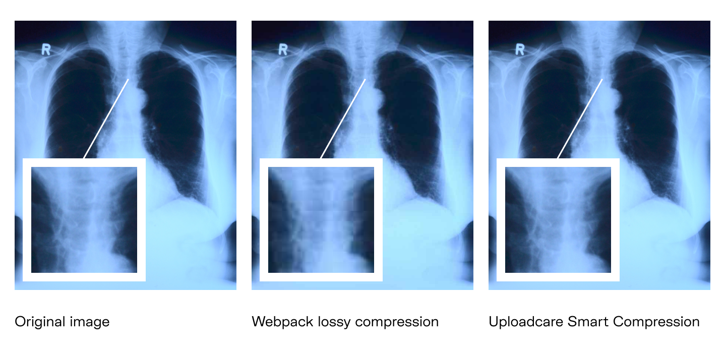A comparison of lossy compression by webpack and smart compression by Uploadcare