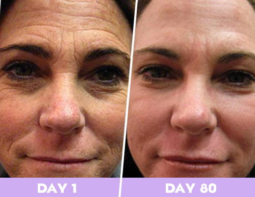 skintific - anti aging for women, best skin care routines fo r women over 40