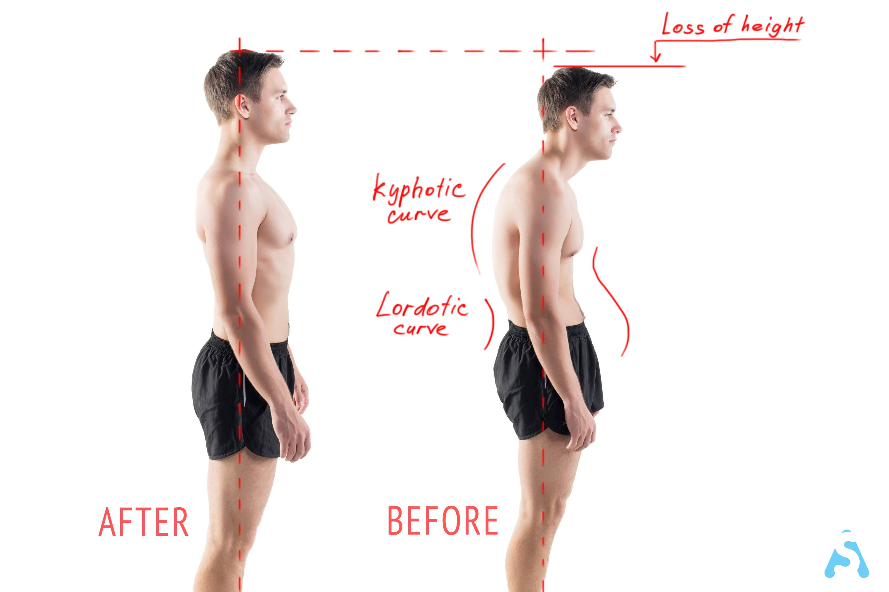 posture corrector showing before and after
