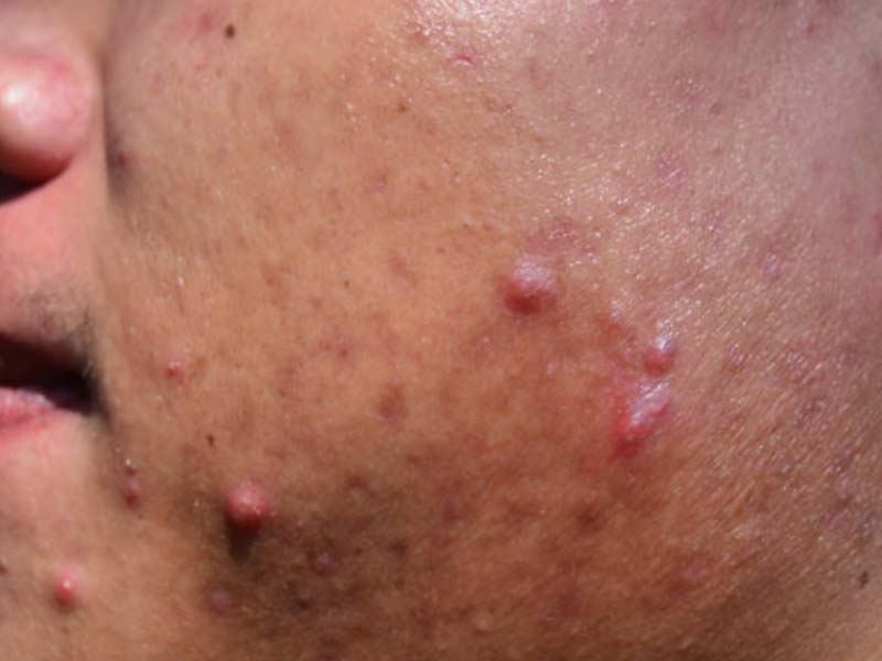 acne nodules