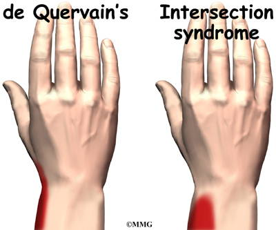 wrist pain carpal tunnel syndrome keyboard