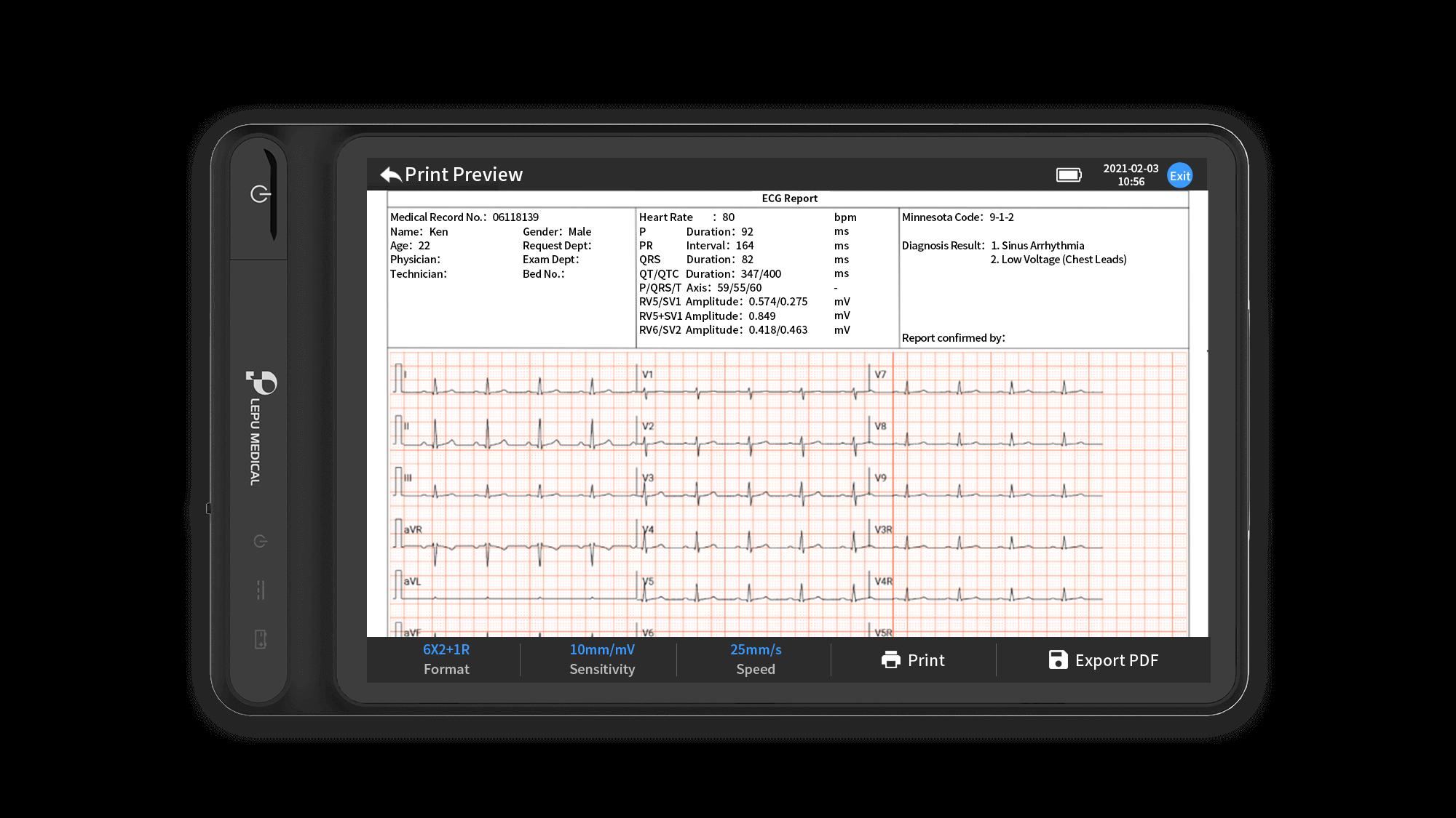 Informe de ECG en la pantalla para mostrar formas de onda y datos relacionados con el corazón.