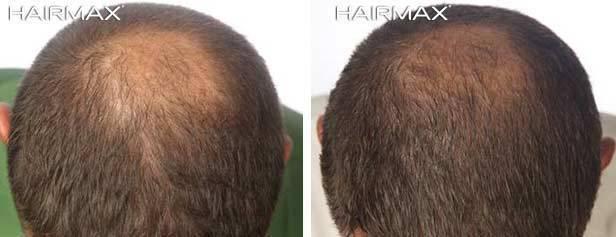 Hairmax Laser Hair B