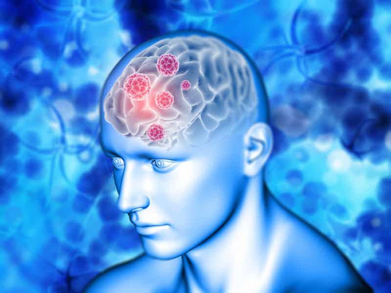 Sintomas de Demência: confira seguir informações para identificar este problema de saúde. Imagem: Freepik.com