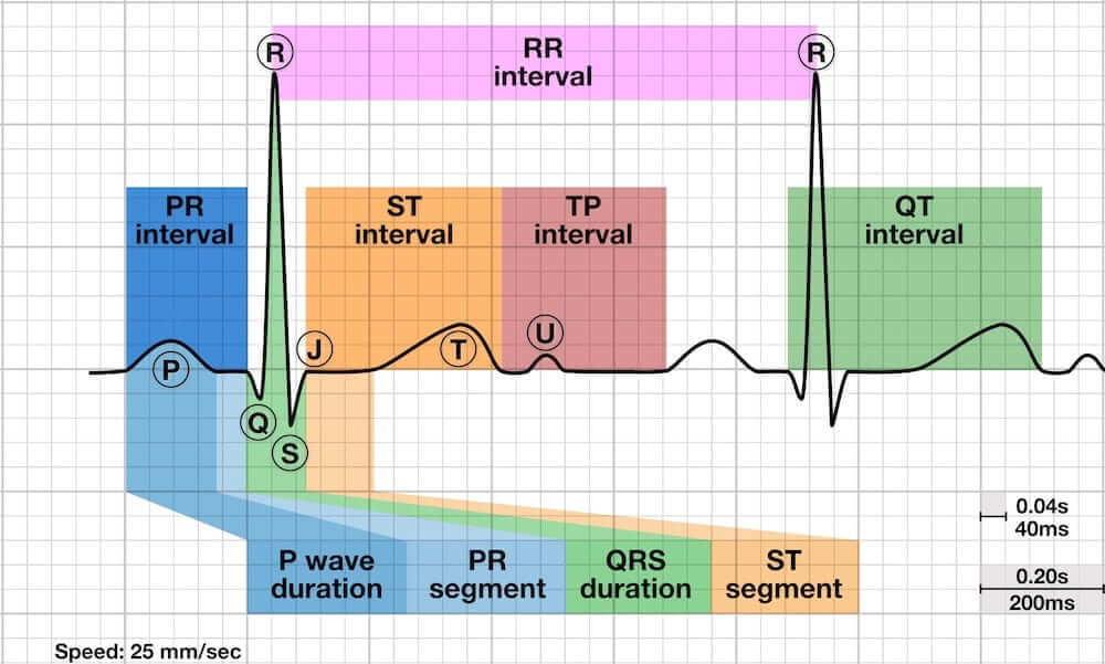 الموجة P ، خصائص عدم انتظام ضربات القلب في الجيوب التنفسية ، عدم انتظام ضربات القلب في الجيوب التنفسية