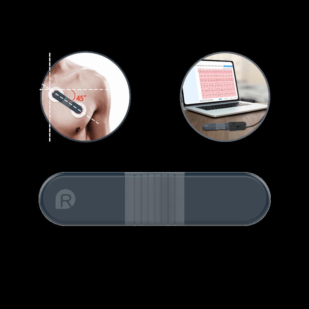 Wellue EKG-Rekorder mit AI-Analyse, 24-Stunden-EKG-Monitor