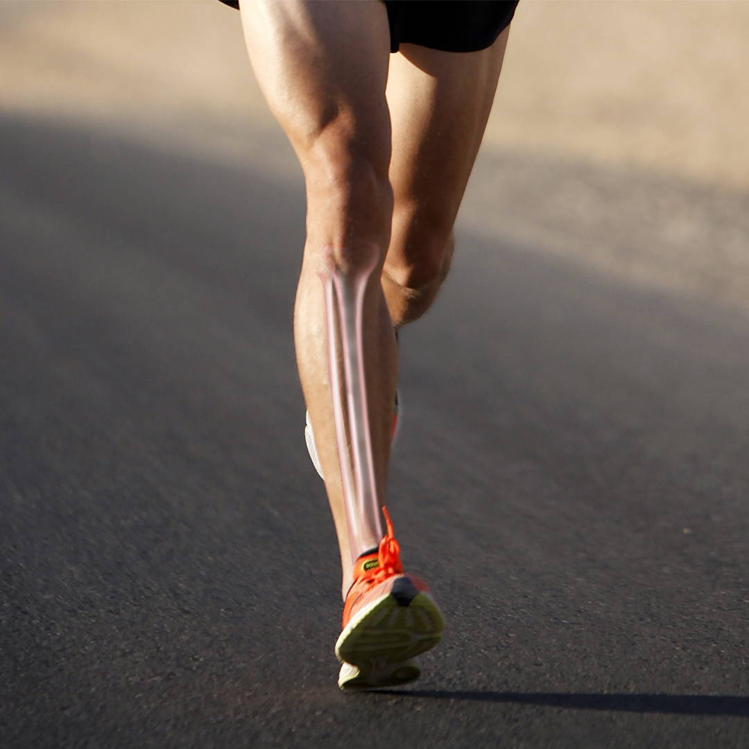 Runner with an x-ray style view of the tibia
