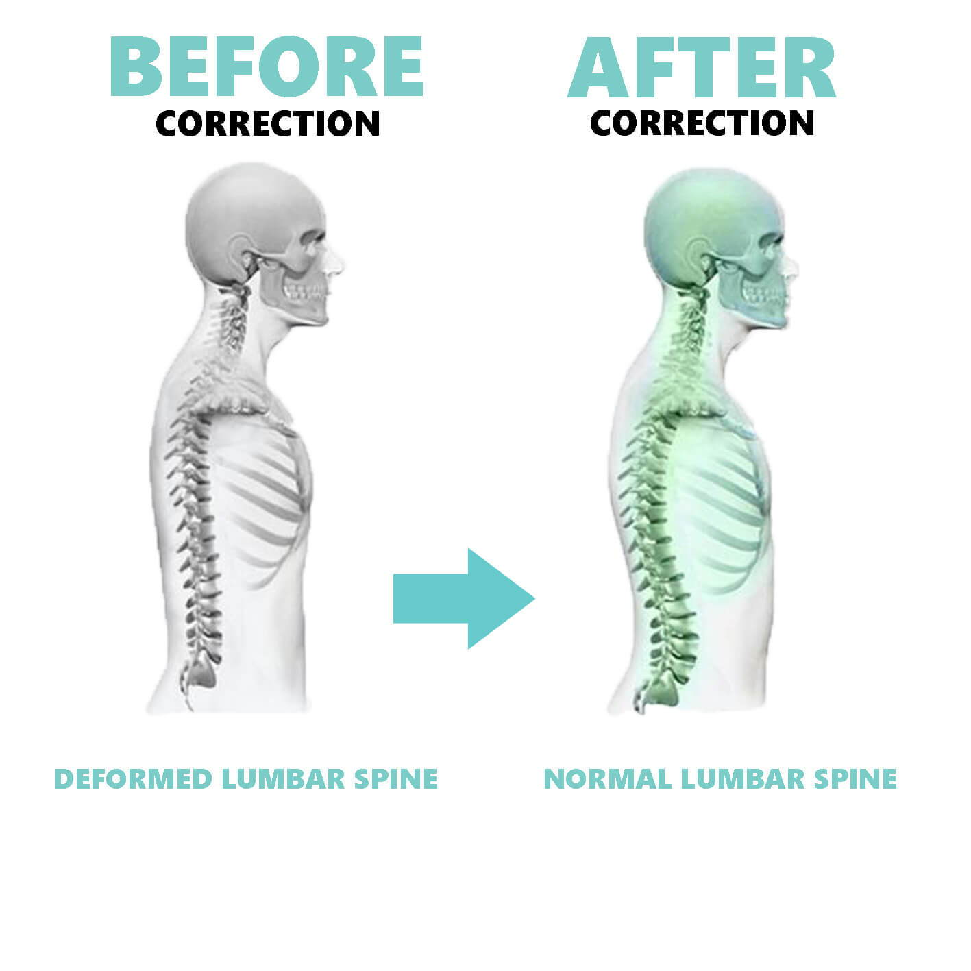 Lumbar Support Results