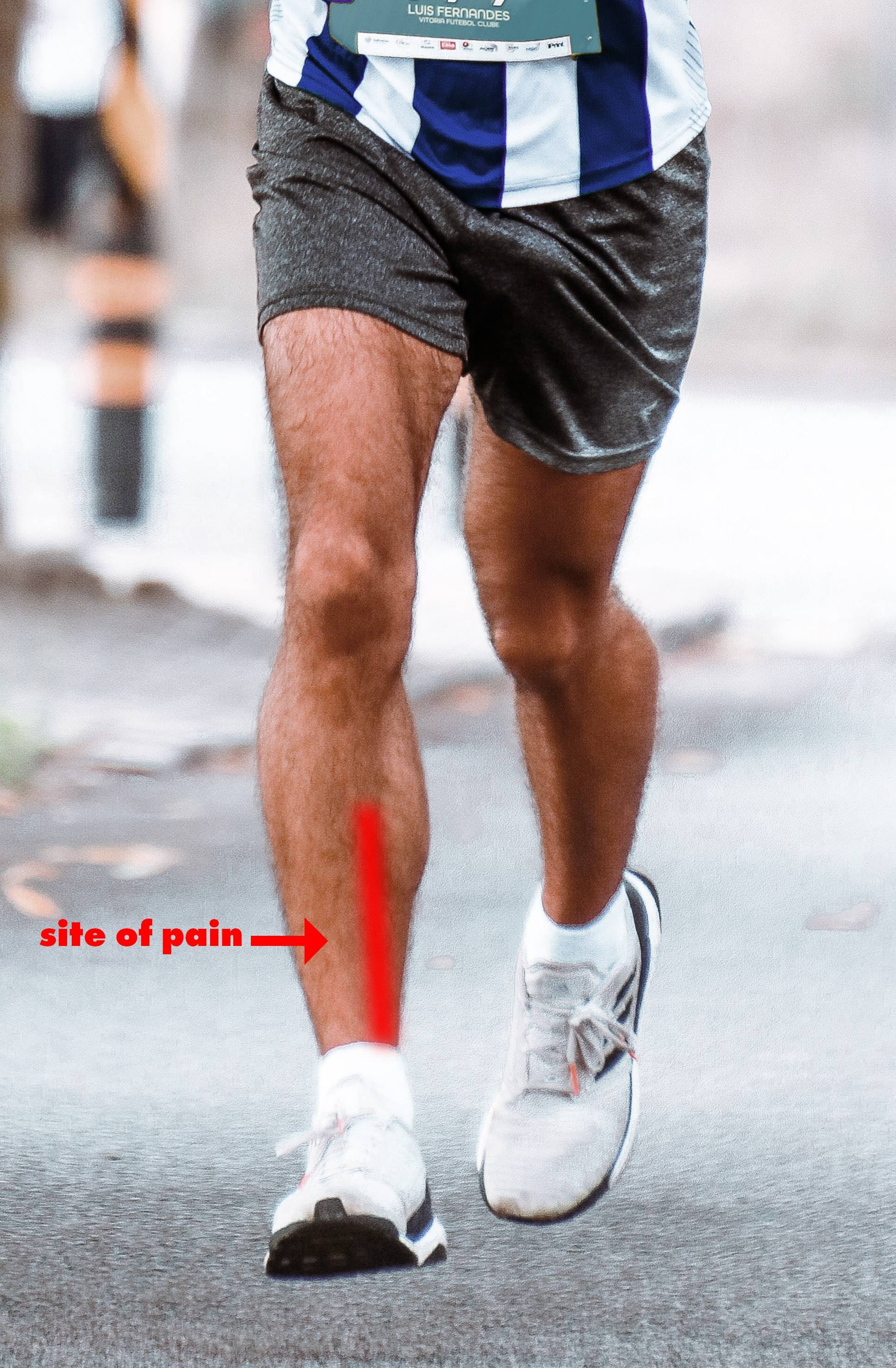 Shin splints or medial tibial stress syndrome is painful