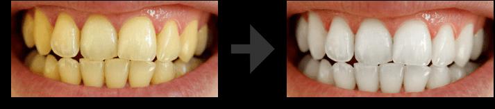 Vorher- Nachher Bild nach der Anwendung vom Bleaching Set