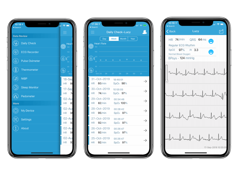 vital signs monitor with APP