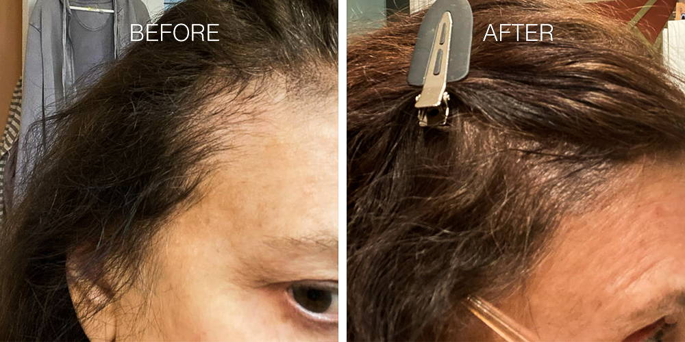 Two images of a womens before and afters