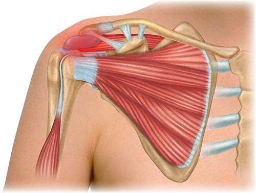 Bursitis Illustration