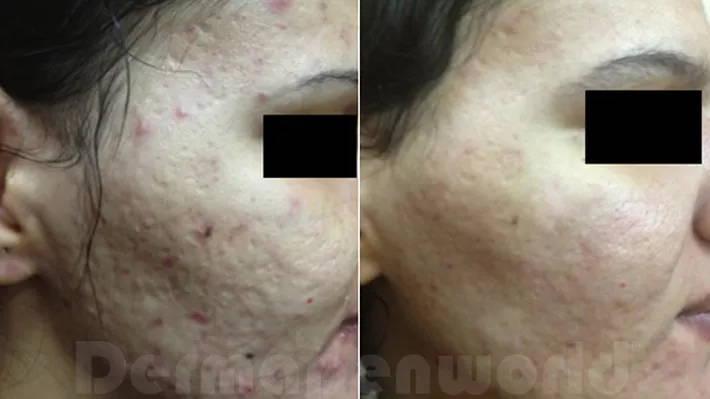 Acne littekens voor en na
