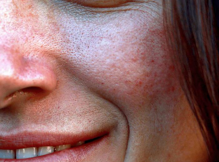Große Poren vorbeugen