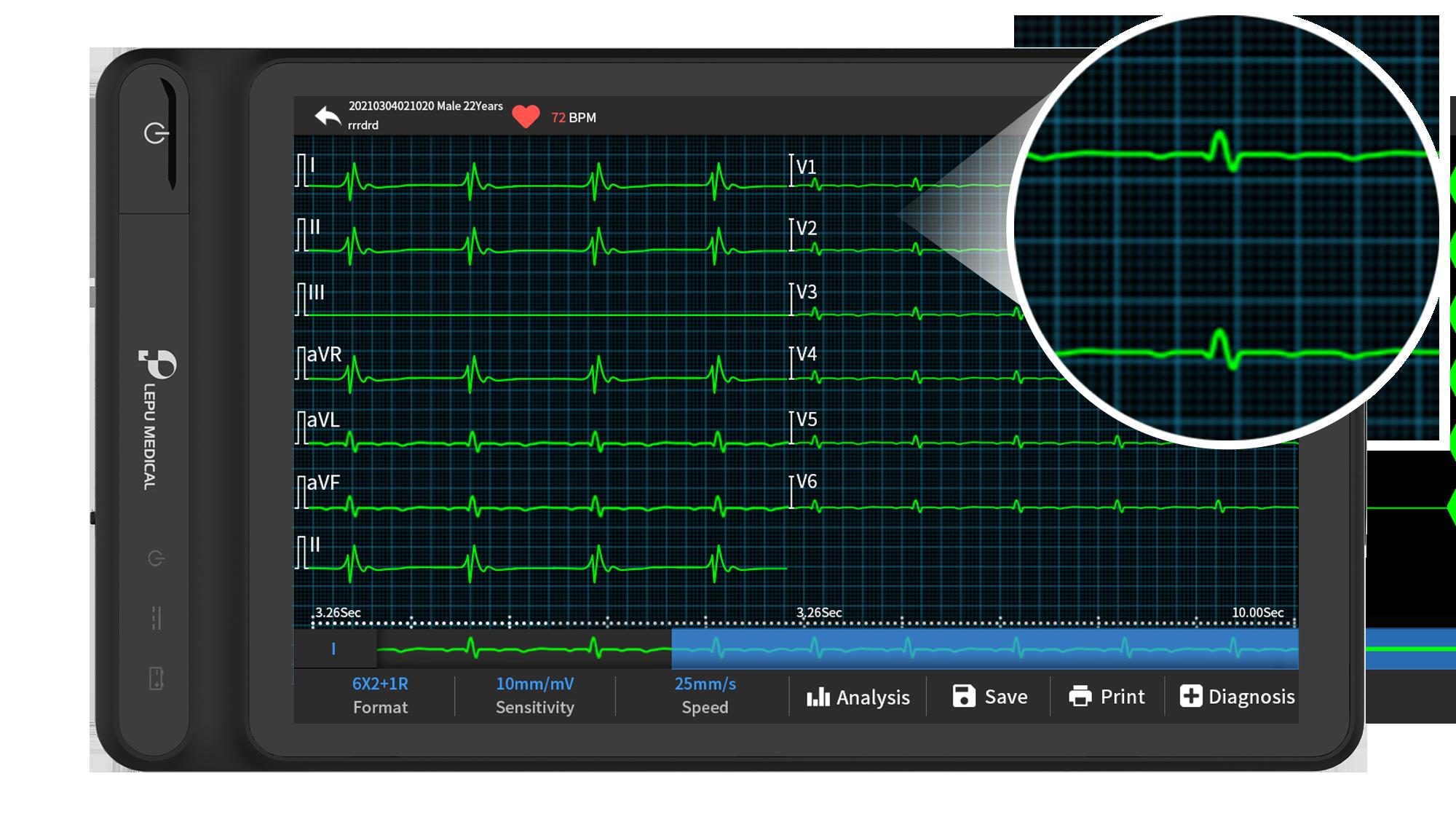 Vea formas de onda y ECG claramente en la pantalla del ECG basado en tableta inteligente Wellue.