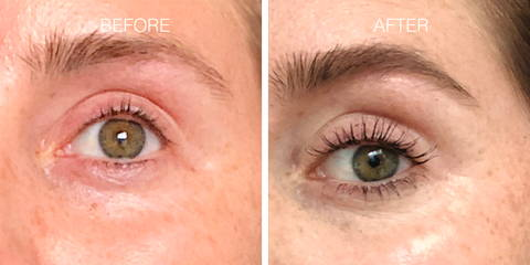 Nulastin Results Increase Lash Length by 60%