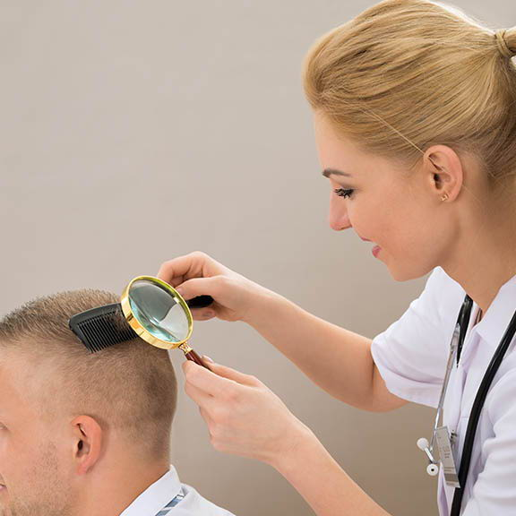doctor looking at a scalp with magnifying glass