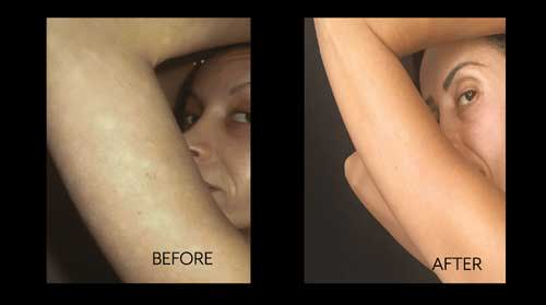 Psoriasis before and after of Sunia K.