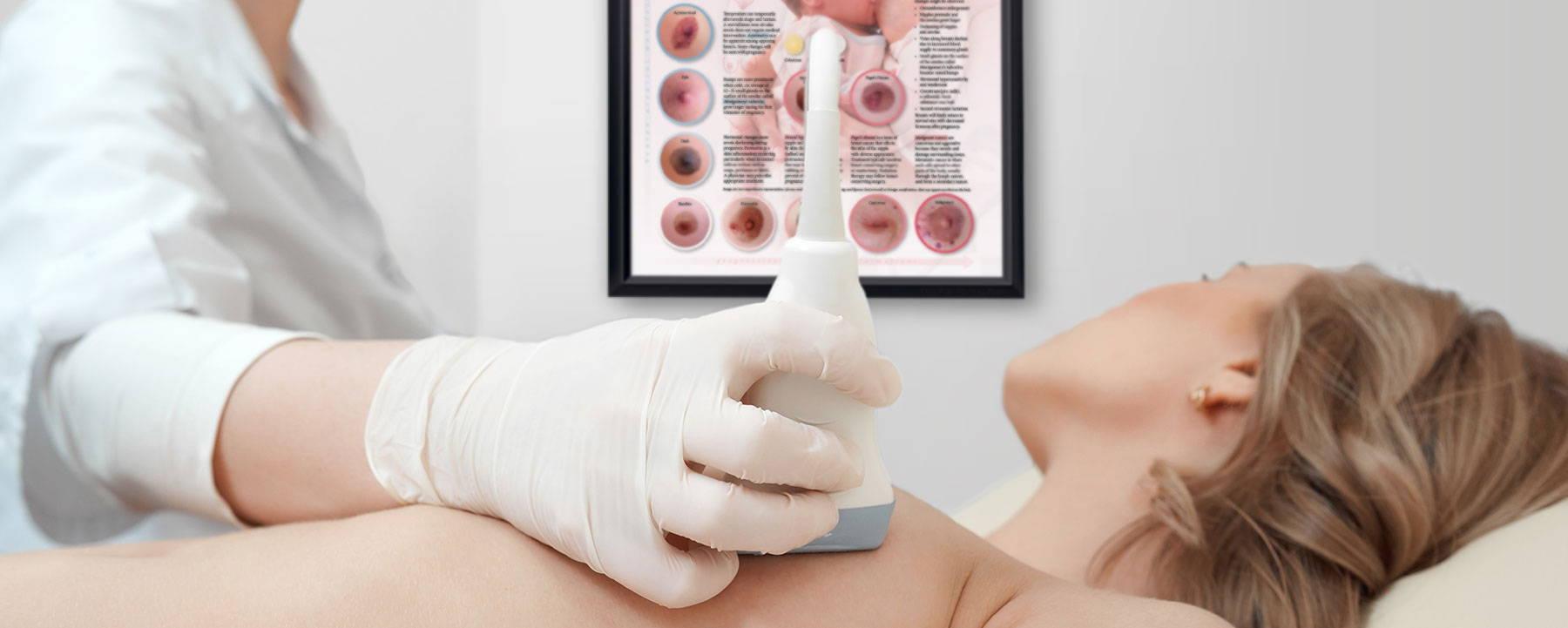 Female Breast Exam