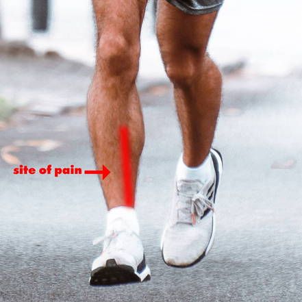 Man running with shin pain highlighted