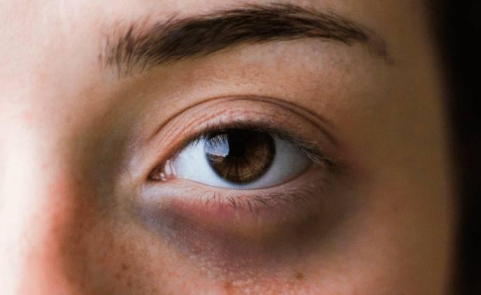 Jasmin-Extrakt bei Augenringen