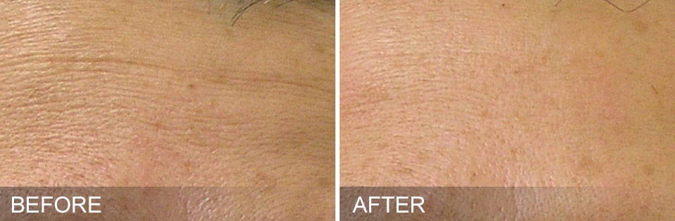 HydraFacial Results - Fine Lines After 1 Month - Thai-Me Spa in Hot Springs, AR