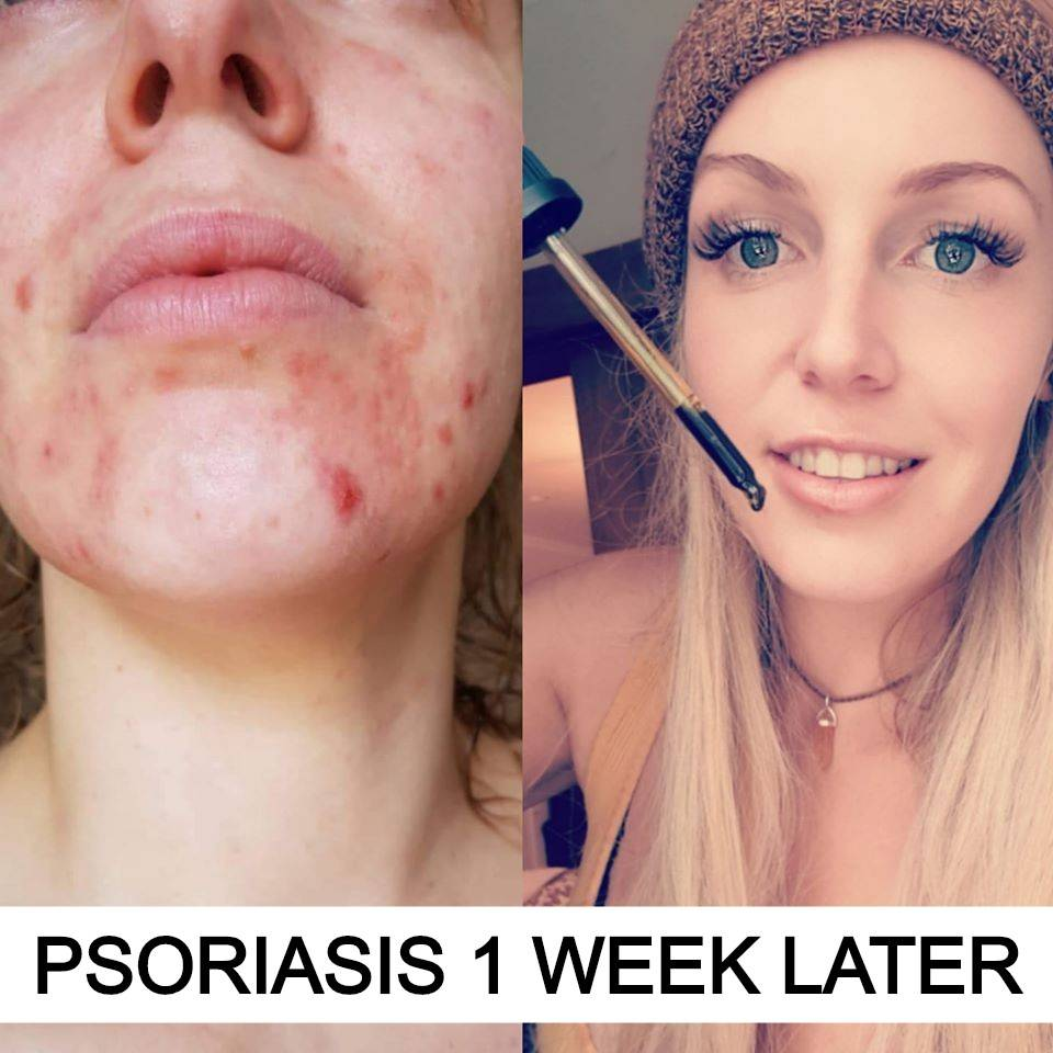 psoriasis hemp
