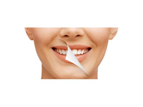Custom Home Dental Whitening Kit