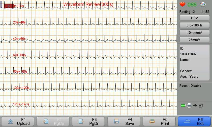 Wellue Biocare iE300 ECG machine's waveform review report in 300s.