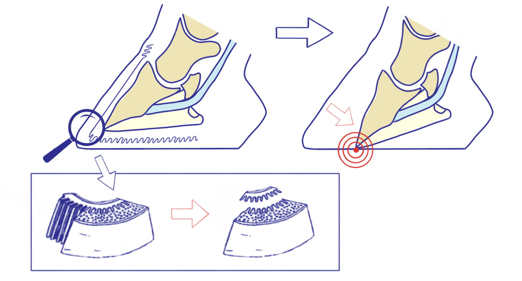 drawing of the loosening of the laminae in the feet of a horse with laminitis