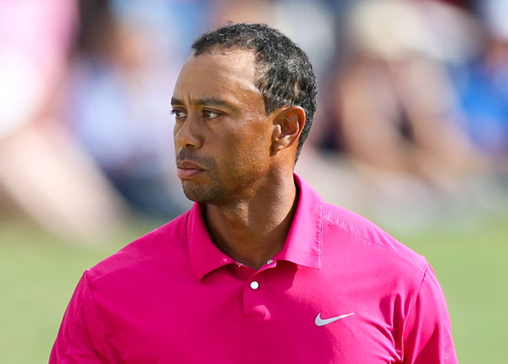 Tiger Woods Hair Loss