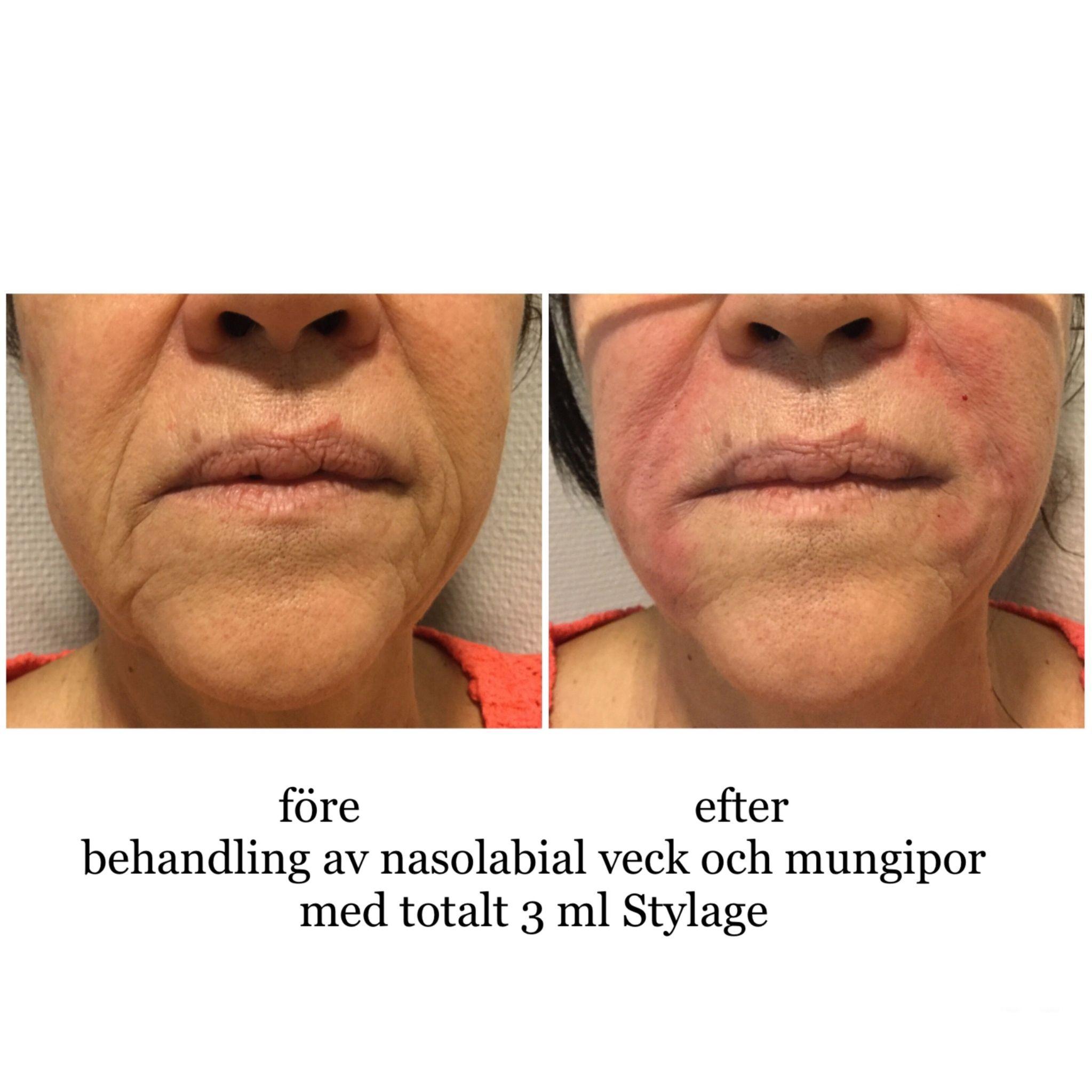 ansiktsbehandling hisingen