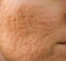 Active acne and acne scar removal  treatment at  our Australian Skin Clinic