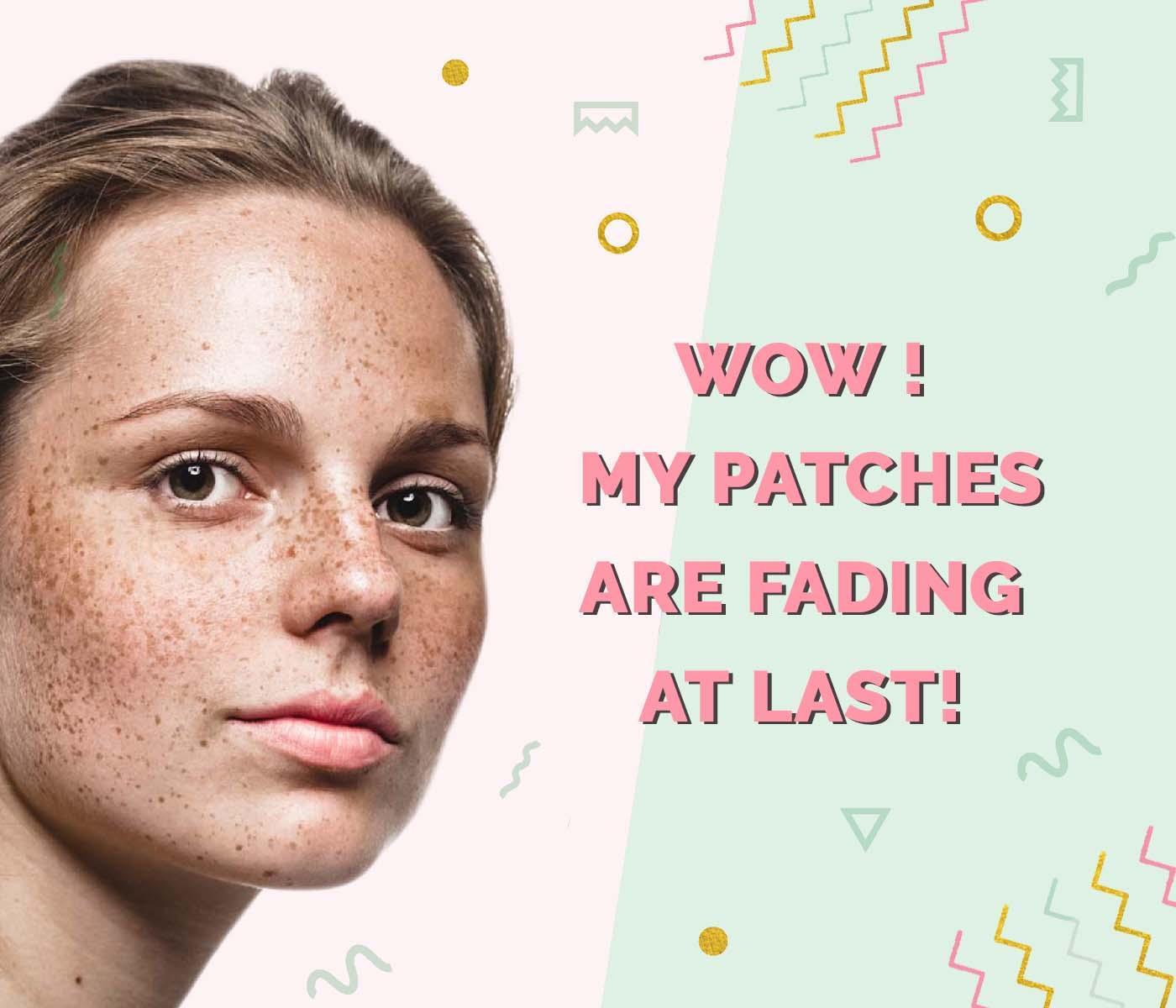Korean skincare for pigmentation