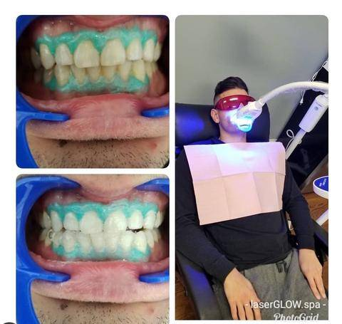 LaserGlow Spa Best LED Teeth Whitening Kit