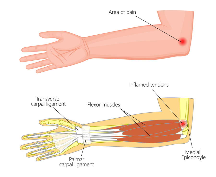ergonomic carpal tunnel syndrome pain