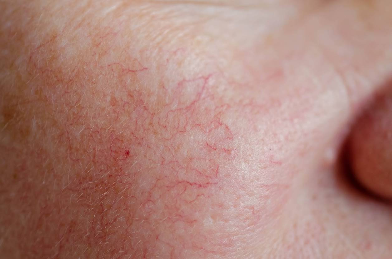 Redness and Rosacea being treated at  our Australian Skin Clinic