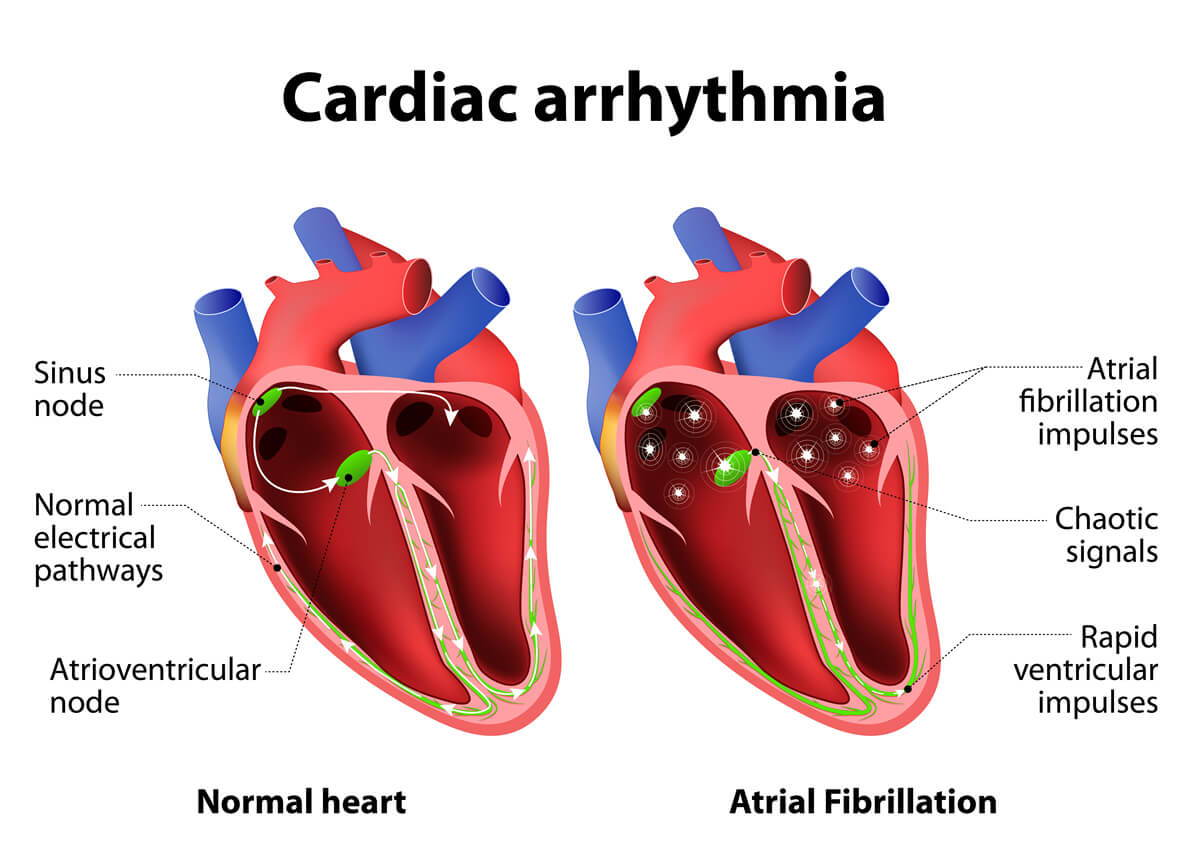 bradyarrhythmia, tachyarrhyhmia, sinus tachycardia, sinus bradycardia, sinus arrhythmia, premature beat, paroxysmal tachycardia, atrial fibrillation, heart block,