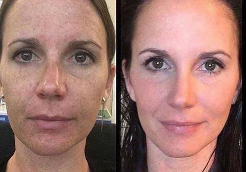 Rejuvenation, LED Face Mask, Light Therapy Mask, LED Light Therapy