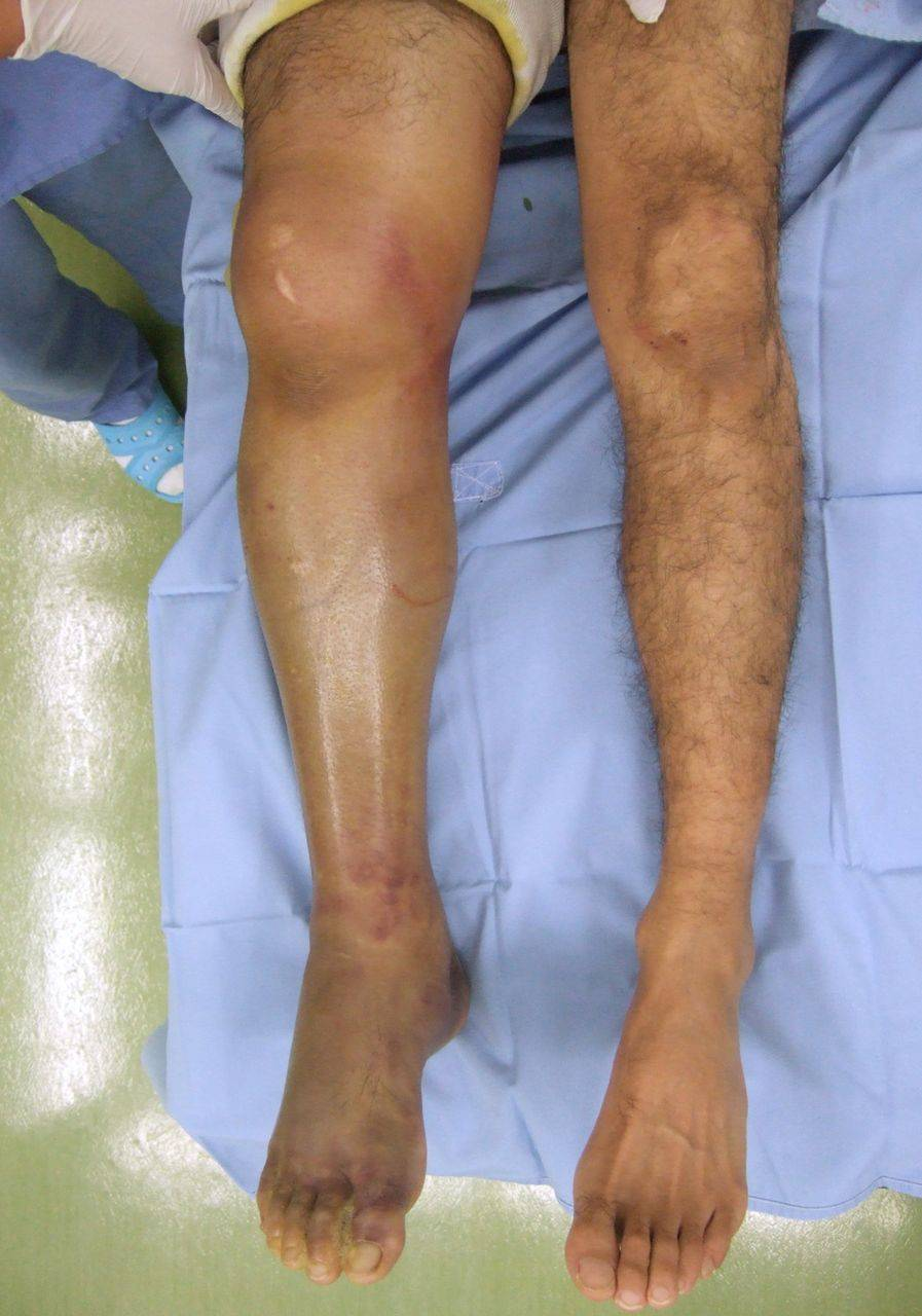 Chronic extertional compartment syndrome