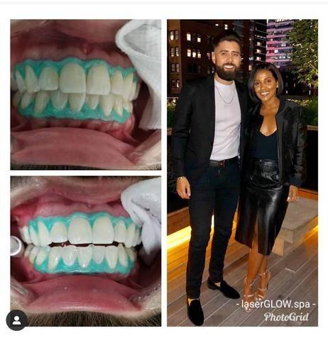 LaserGlow Spa Best LED Teeth Whitening Kit The Bearded Banker