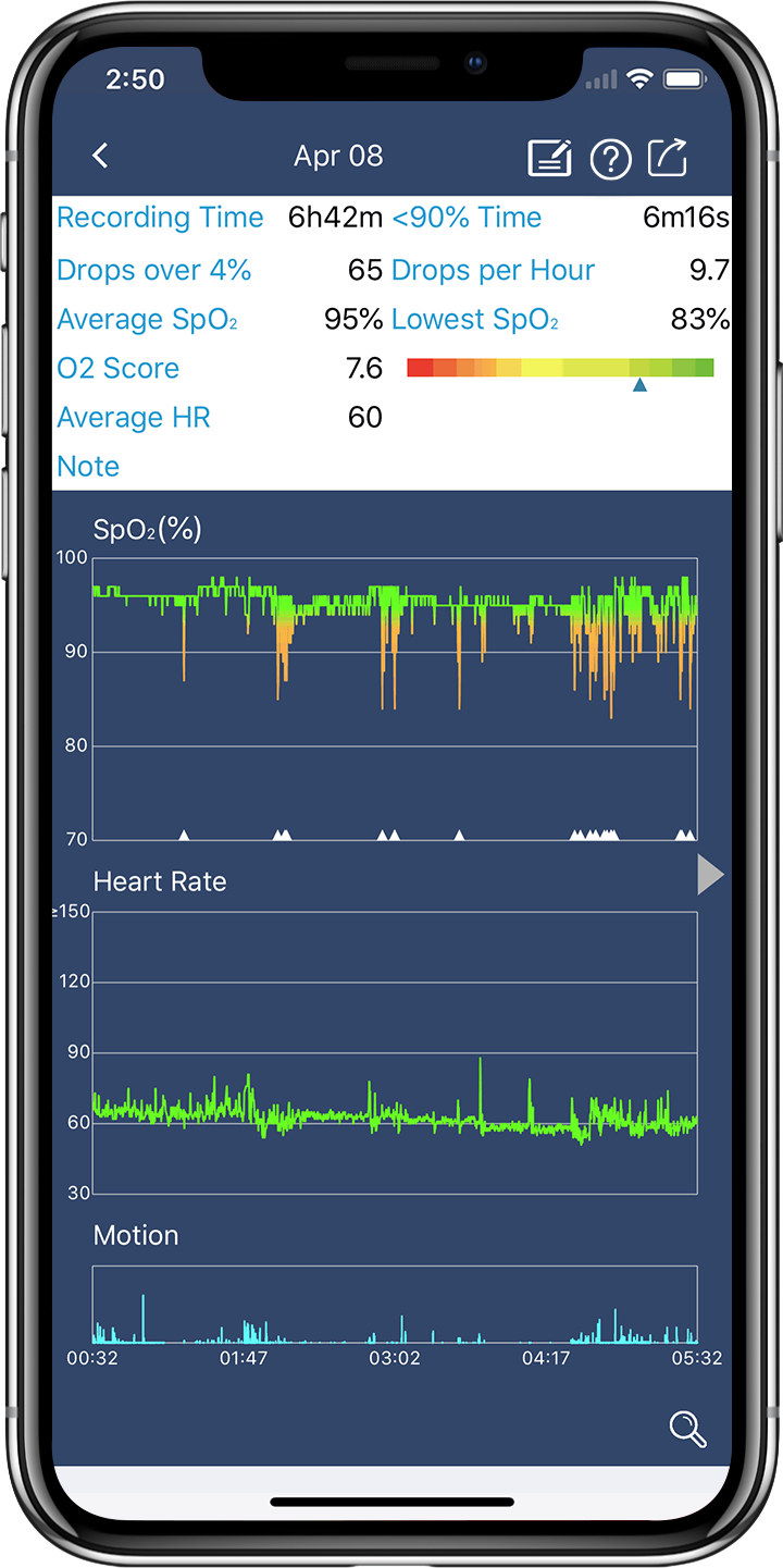Wellue O2Ring Pulse oximeter App shows the sleep oxymetry report