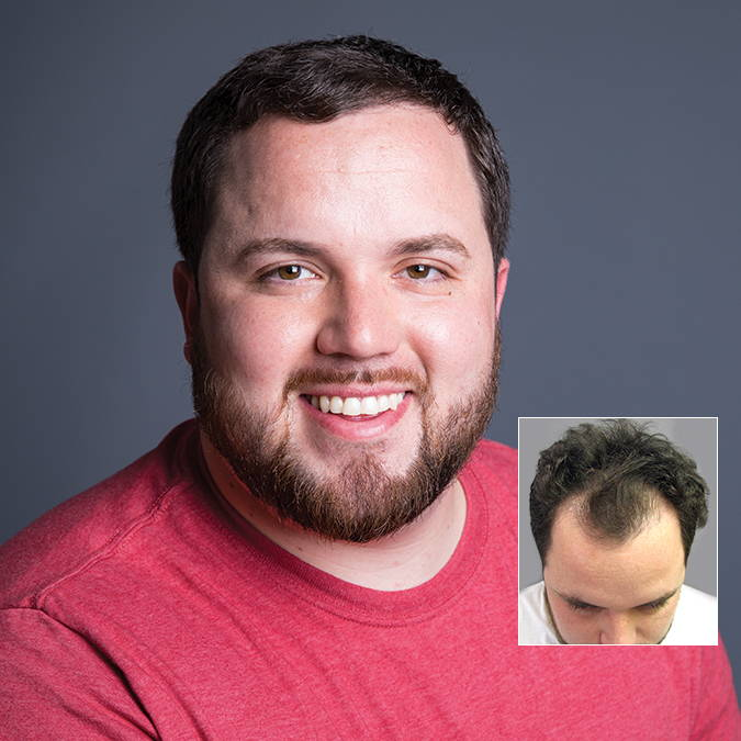 Male with FUE hair transplant